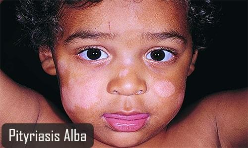 pityriasis alba ayurvedic treatment