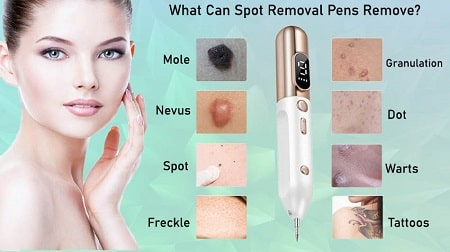 how to use skin spot removal pen